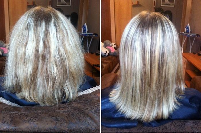 Выпадение волос - причины возникновения и симптомы